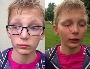 The young boy was assaulted in a Warrenpoint park